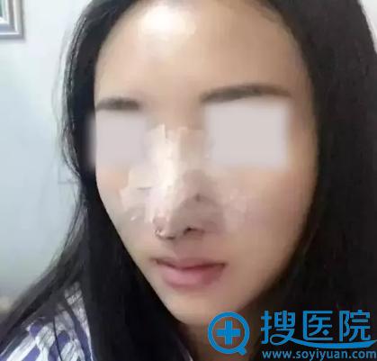 西安美好鼻综合手术术后1天照片