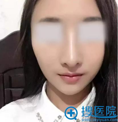 西安美好整形美容医院隆鼻手术9天