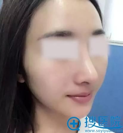 鼻综合手术术后半个月恢复情况