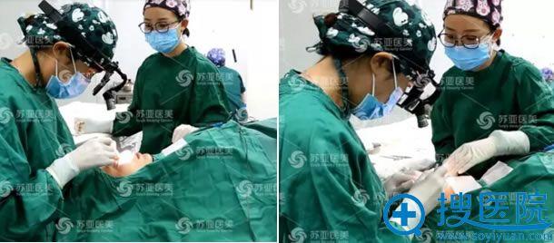 李燕院长为小斐做双眼皮手术过程
