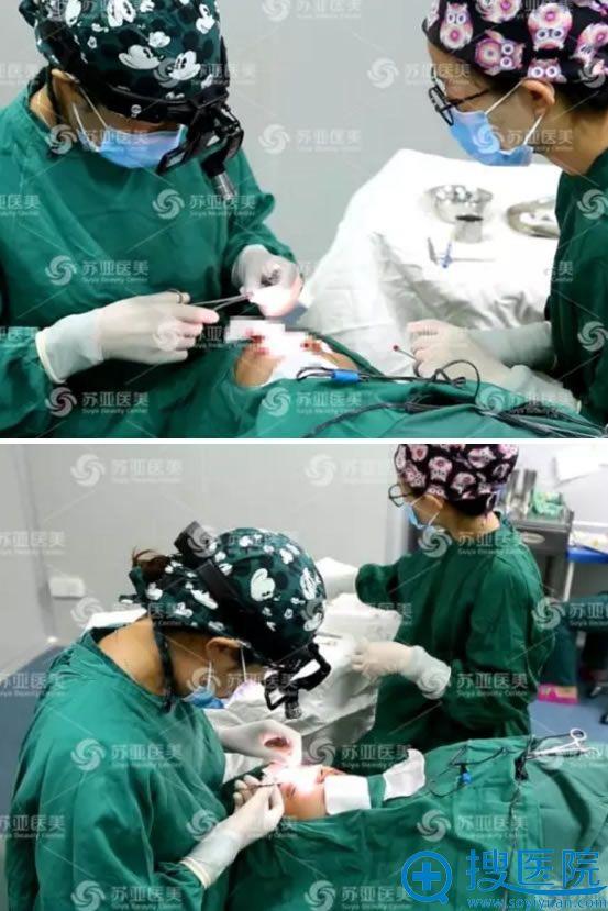 双眼皮手术的缝合过程图