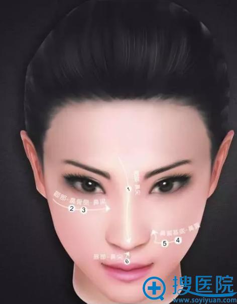 鼻整形手术的六大高光点与四大关键点
