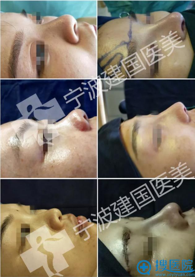 宁波徐建国做鼻子手术案例