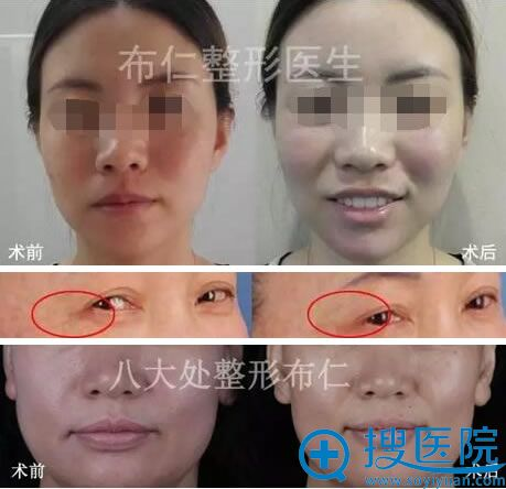 北京医科布仁注射瘦脸除皱案例