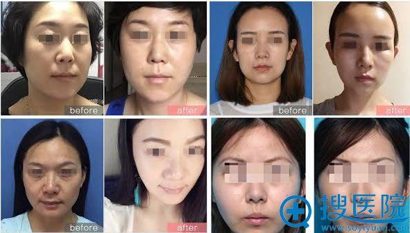 李雨璇注射玻尿酸除皱案例