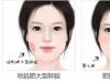 深圳美莱告诉你:瘦脸应该选溶脂针还是瘦脸针?可以一起用吗?
