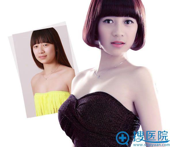 北京丽都假体隆胸案例