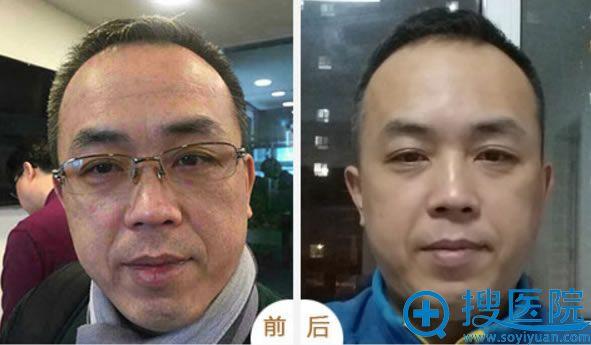 北京丽都做面部线雕真人效果