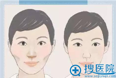 面部颧骨过高示意图