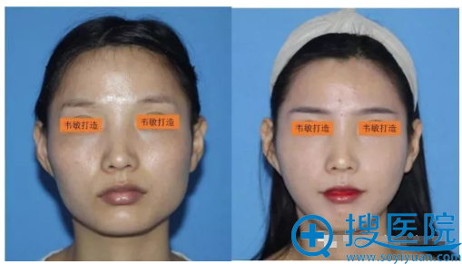 上海九院韦敏教授颧骨+下颌角案例对比图