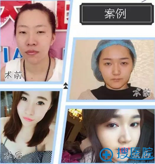 韩式埋线双眼皮手术适合学生做