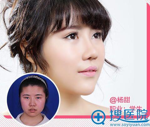 学生隆鼻手术真人案例