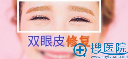 双眼皮整形失败修复