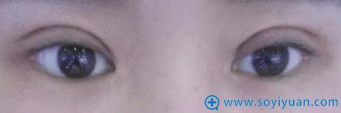 双眼皮恢复期过后出现过宽的症状
