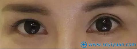 双眼皮术后不对称图示