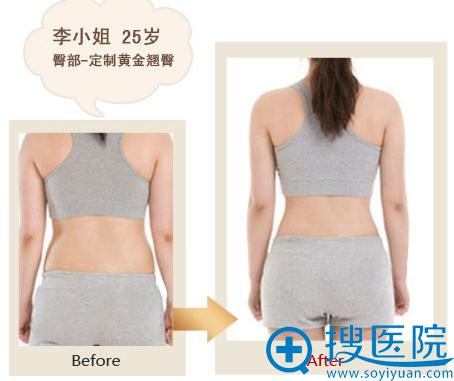 太原时光整形美容臀部吸脂案例对比