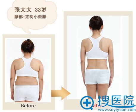 太原时光整形美容腰部吸脂案例