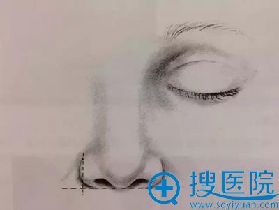 鼻部鼻翼标准示意图