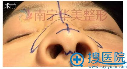 隆鼻术前照片