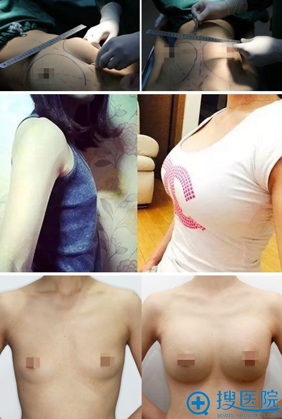 北京清华长庚医院整形科假体隆胸案例