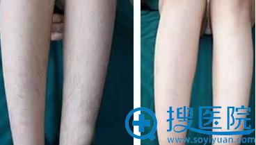 重庆星宸整形美容医院脱腿毛对比图