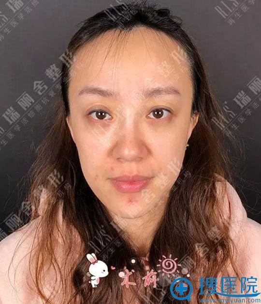 手术前脸颊凹陷严重的照片