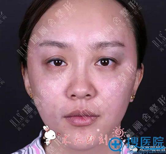 脸颊凹陷部位做完脂肪填充即刻效果