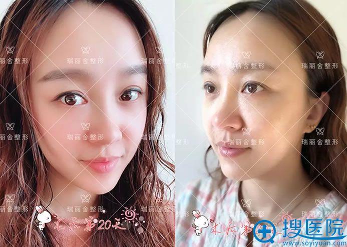 20天时候化妆和素颜效果对比图