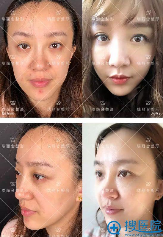 脸颊填充前后效果对比图片