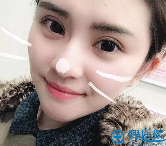 双眼皮和瘦脸针手术14天效果