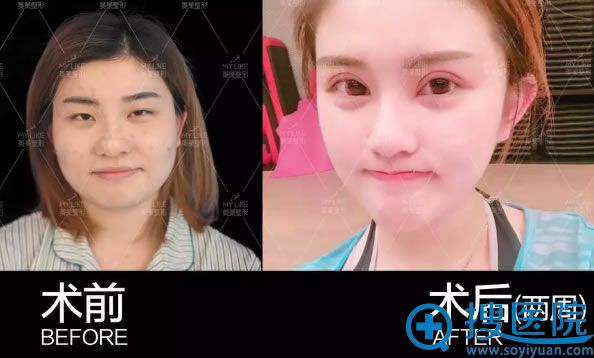 天津美莱注射瘦脸针2周效果对比图片