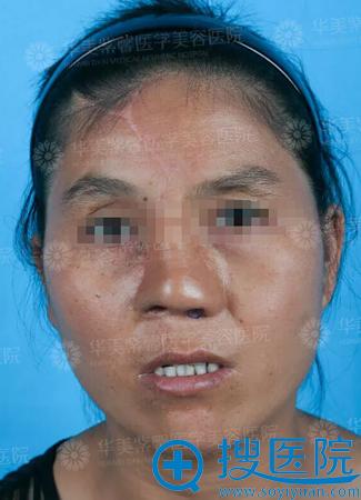 一期鼻修复术经过恢复期后的效果
