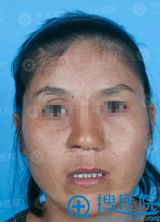 杨力二期鼻部调整术后即刻效果