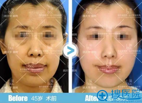 smas面部除皱提升术前后对比案例