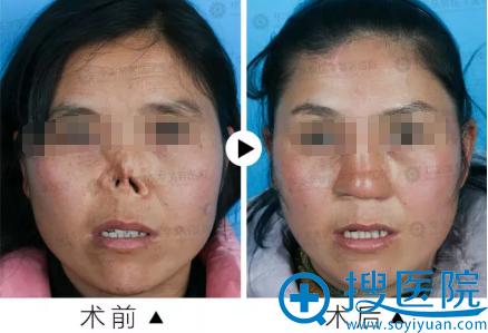 四川华美紫馨全鼻再造术前术后对比