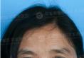 """7个月3次手术,华美紫馨杨力院长为""""无鼻女士""""再造活鼻"""