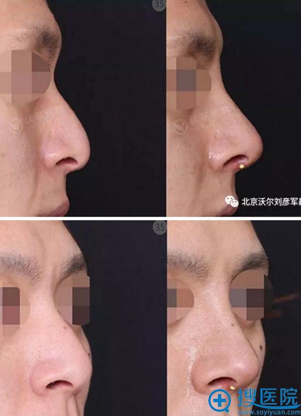 鼻中隔歪曲矫正手术侧面效果