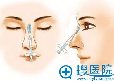 注射隆鼻手术示意图