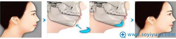 假体隆下巴手术过程示意图