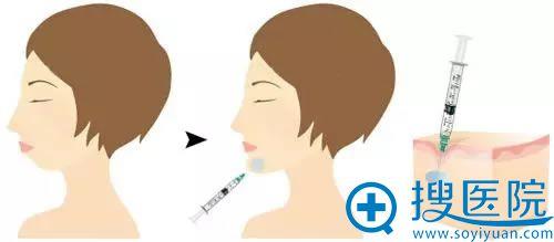 注射玻尿酸丰下巴手术示意图