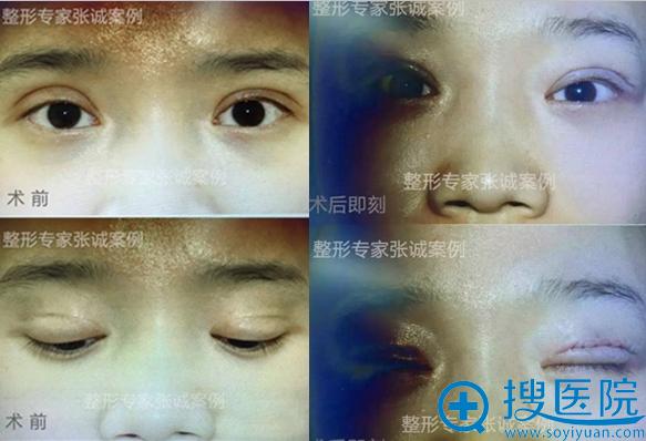 整形医生张诚双眼皮修复术前术后案例