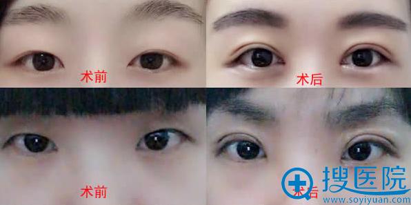 杨晓楠医生双眼皮手术案例