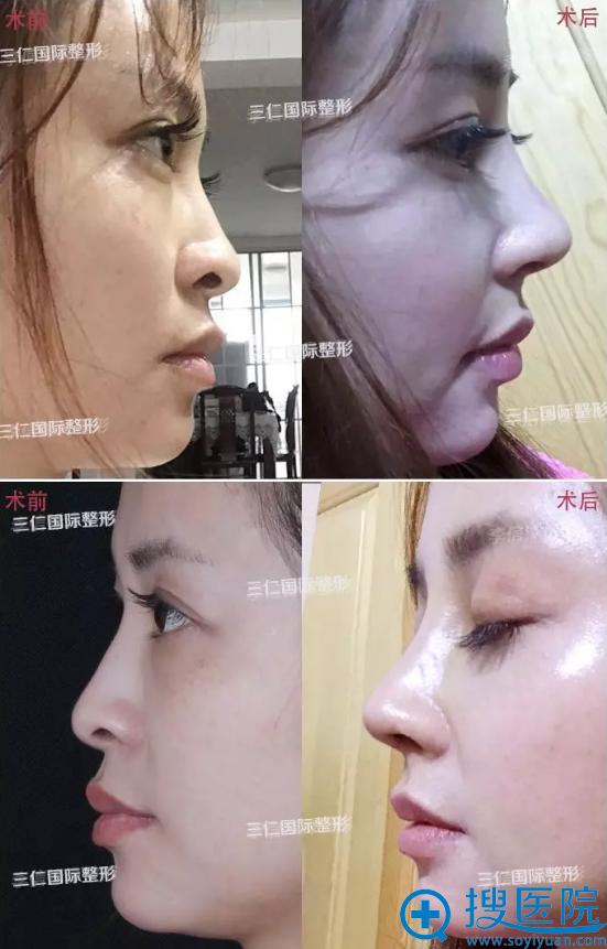 北京三仁鼻尖鼻梁综合整形案例