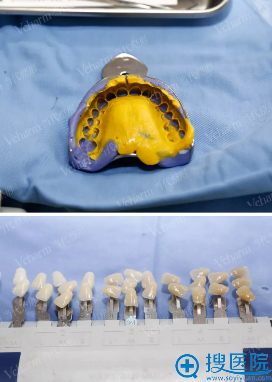 缺损门牙修复准备阶段