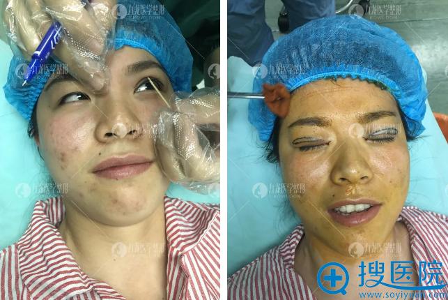 珠海九龙梁富荣设计双眼皮手术方案