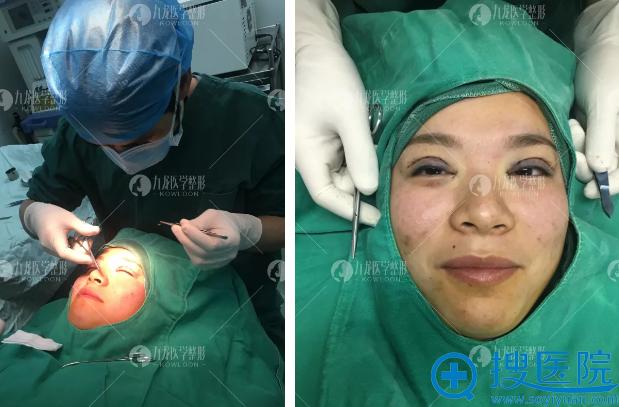 梁院长做双眼皮手术过程