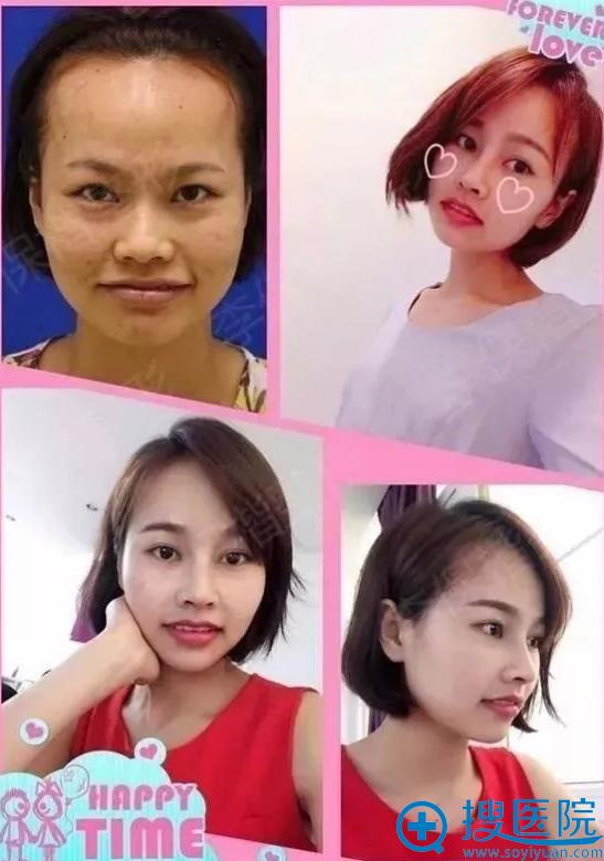 李保锴隆鼻案例照片