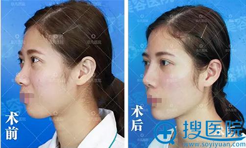 深圳非凡玻尿酸隆鼻+丰下巴术前术后对比