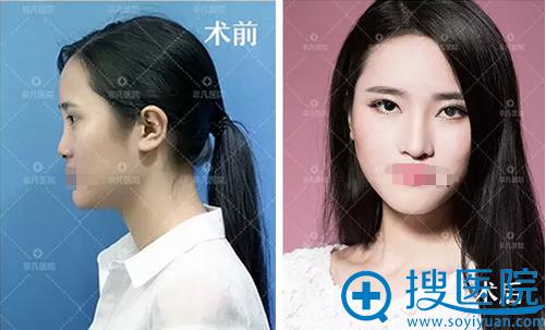 深圳非凡整形美容医院膨体隆鼻术后对比照