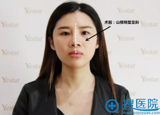 北京艺星歪鼻修复手术前照片